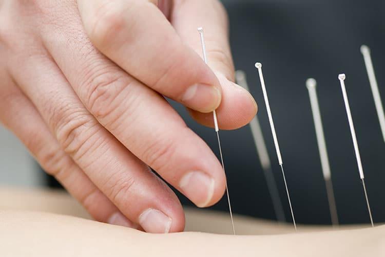 acupuncture scottsdale